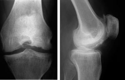 Osteokondroosi valjavool ja geelid Olaliigese parast vigastust