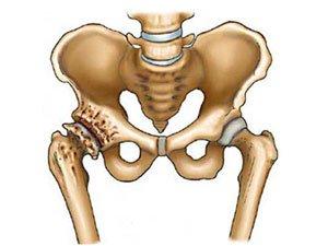 Ravi artroosi suurte liigeste