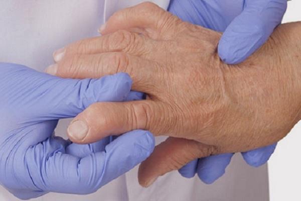 Artriit sorme kate parast vigastusi