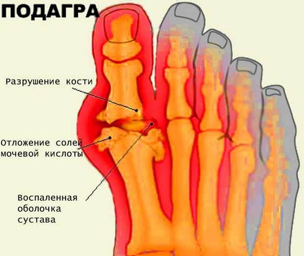 Kute salvid osteokondroosis Valu luud liigeste mazi