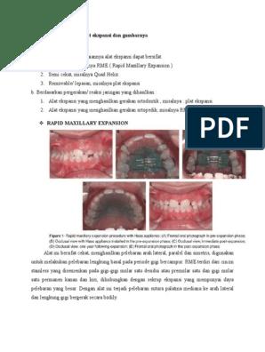 Ravi ola liigese 3 kraadi artroosiga Tugevad valud olahoidja
