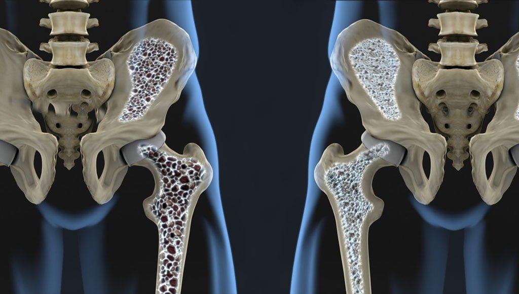 Artroosi tootlemine liigeste salvidega