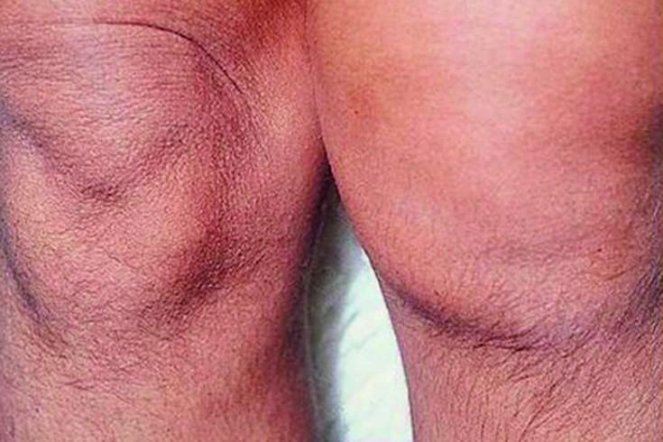 Mazi liigeste artriidi raviks AGAFIA LYKOVA liigeste tootlemine