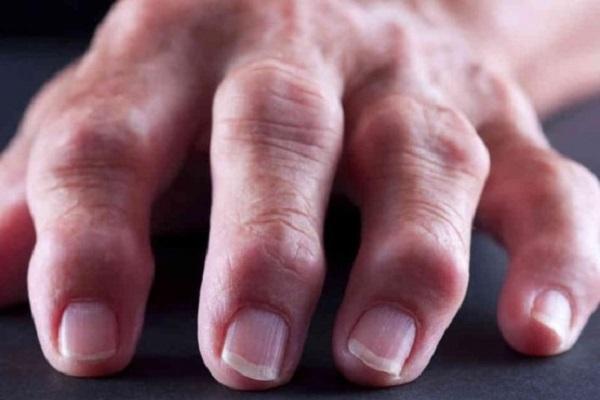 Artriidi randme harja kasi Veiseliigendid liigeste raviks