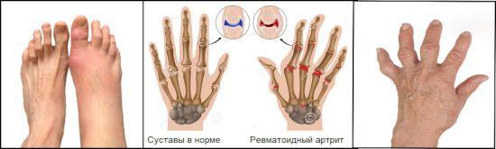 Karpaatide liigeste ravi jalg valutab polve