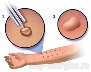 Rahvameditsiini artroosi ravi Osteomueliidi liigeste ravi