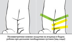 Miracle salv valu liigeste valu valus liigesed paremal pool keha