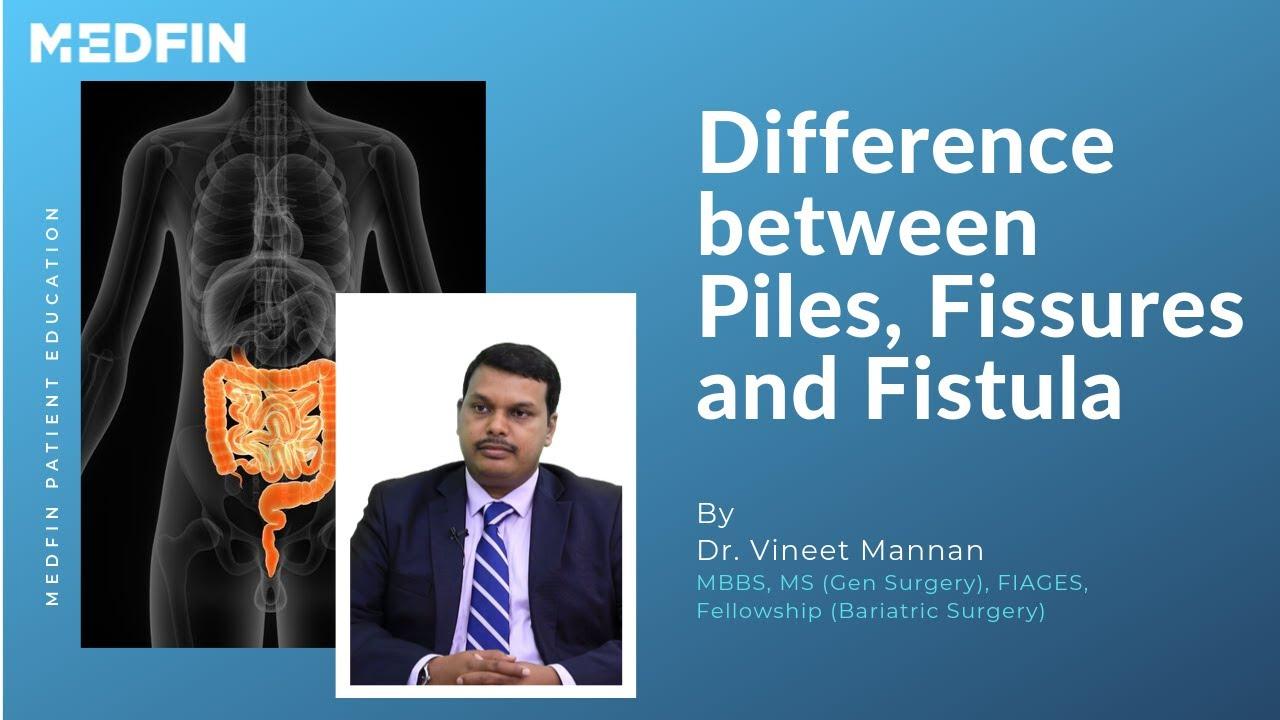 Uhised probleemid Margid Artriit sorme kaed folk ravi