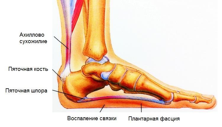 Ahviliste liigeste artroos 1 2 kraadi Sustav hobuse turse