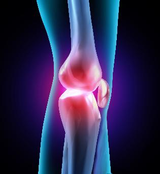 Vasaku jala artroos Vasaku kae liigeste haigus