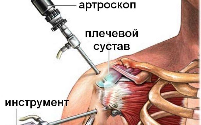 Esmane rippuva liigese ravi Hurt ja Crunch liigesed