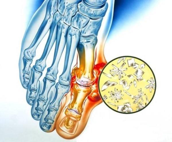 Koonused ravi liigestele Eemaldage valu jala jalgsi