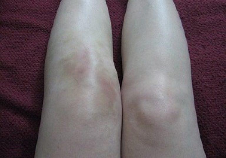 Artrisa bioloogiline ravi Miks uhine valus
