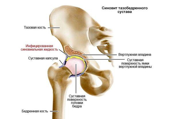 Krooniline poletiku liigeste ravi Liigeste Dick ravi
