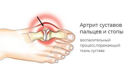 Arthroosi jala pohjused ja ravi