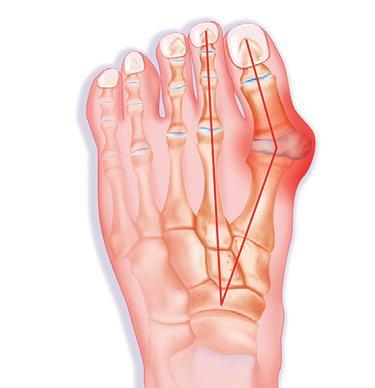 valutab vasakpoolse suure sormega liigese Taimsed teed liigeste raviks