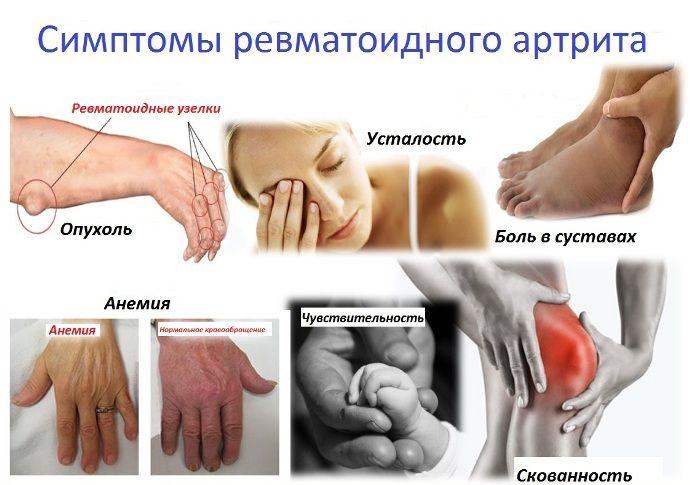 valus ola liigese ja lihaste Kreemigeel kate liigeste jaoks