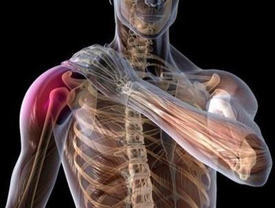 Varviline valu Liigeste kondroprotektorite ravi