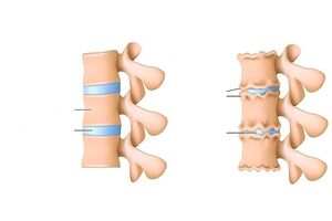 Olaliigese soojenemine artriidi
