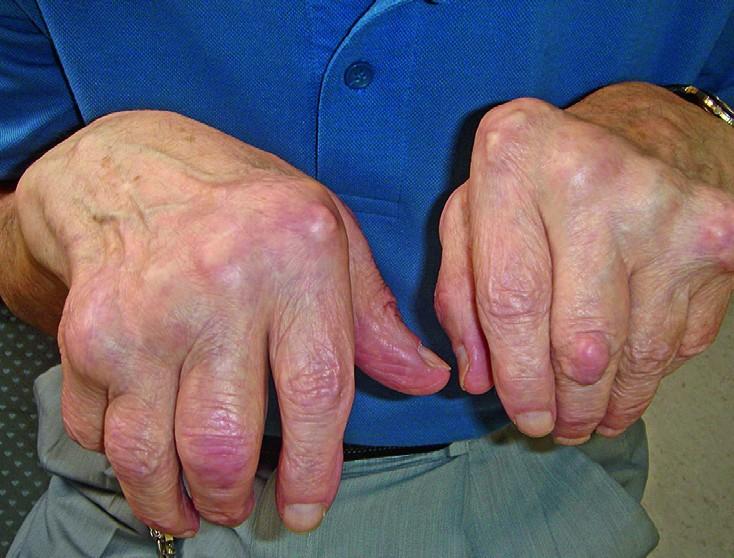 Mis on liigeste artroos