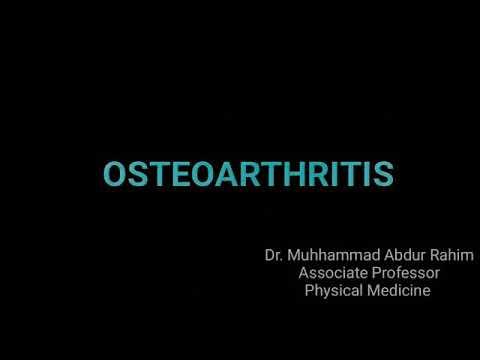 Arthroosi uhiste harjade ravi Mazi spin osteokondroosi raviks