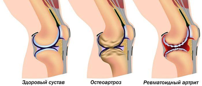 Reumatoida artroosi ravi