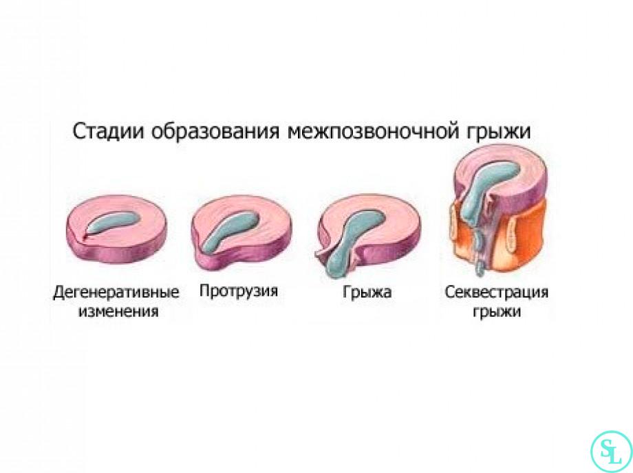 Artroosi ravi esialgsetes etappides