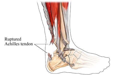 Valutab liigese jalgade ravi Urtikaaria ja liigeste turse