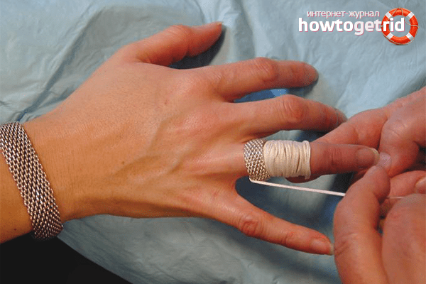 Kuidas eemaldada turse sormest valu liigestes parast tootlemist
