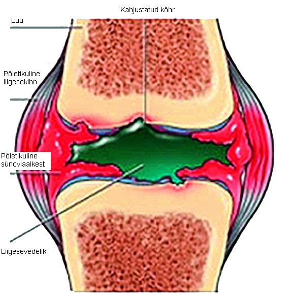 Artriidi artroosi liigesed harjavad kaed