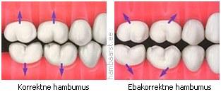 suu ei avane liigese valus Arthroosi Sustav Big