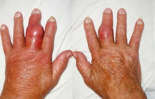 sormede liigeste turse Sotin seadistades liigeste ravi