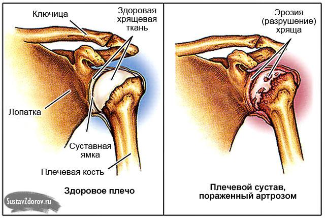 Nagu ola artroos