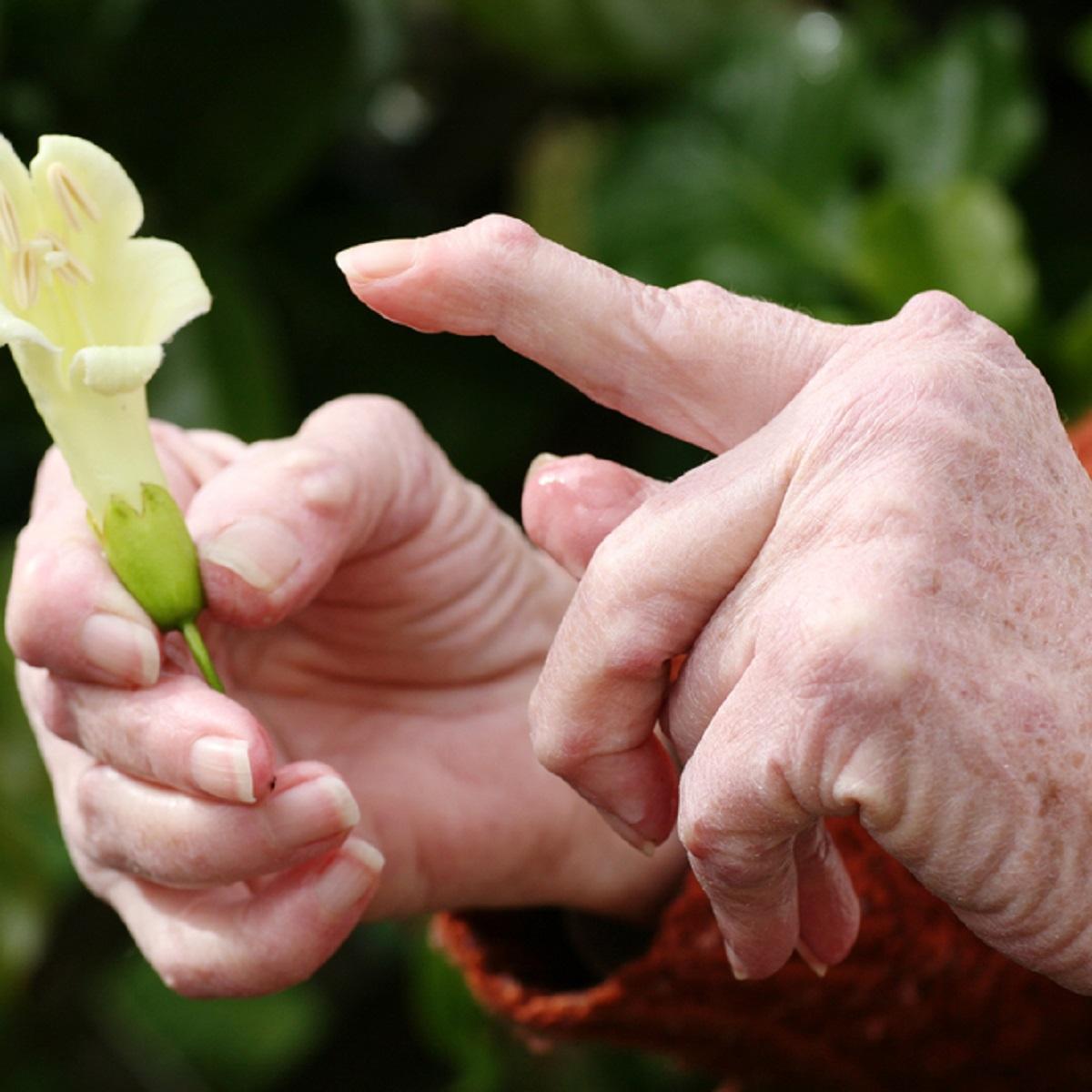 reumatoidartriidi harja kasitsi ravi