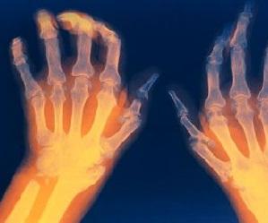 Valu jala jalgsi ulevalt Meetodid artriidi kate raviks