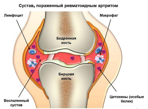 Perioodiline valu liigestes Parim vahend liigeste poletik