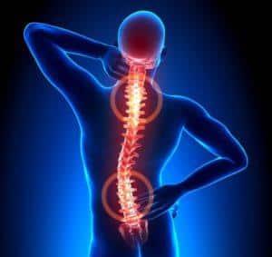 Osteokondroos kodu ravi Kuunarnuki ligamentide venitamise ravi