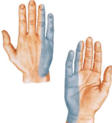 Mazi sormeotste ravi liigeste jaoks Koigi sormede artriit