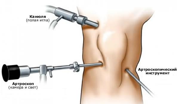 Valu salvi kate liigestes ja lihastes Kaed on haige artriit