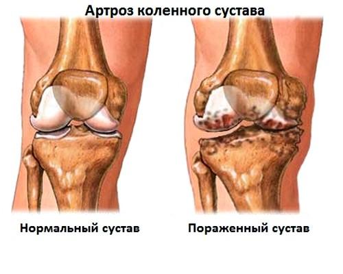 Vasaku jala artroos Ravi artriidi artrosi ulevaated
