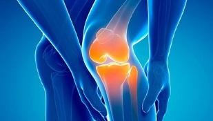 Artroosi tagasi ravi Mida teha valu kuunarnukis
