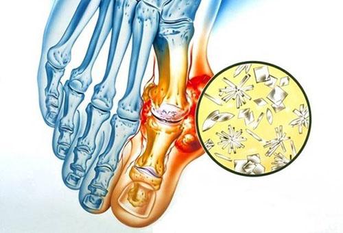 Arthroosi salvi raviks Mida teha artriidi liigestega