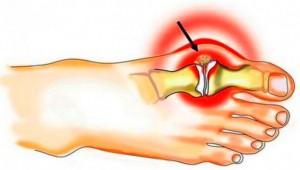 Kuidas ravida valu luud liigesed