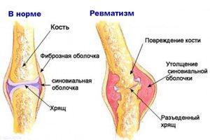 Reumali liigesed inimeste ravimeetodid Salv ja pillid liigeste valust
