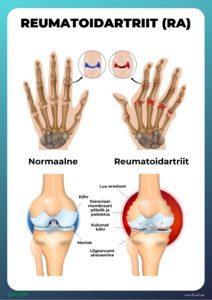 Steroidid liigeste ravis