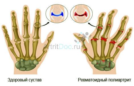Koonused artriidi sorme liigestele