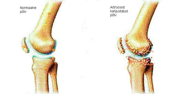 Artrosi liigeste sormed