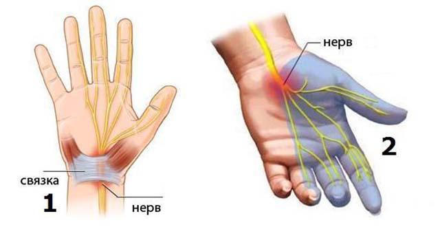 Ahviliste liigeste katmata artroos kuunarnuki turse