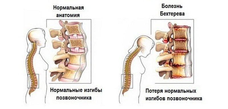 NIKA Liigeste ravi Klaasliidete haigus