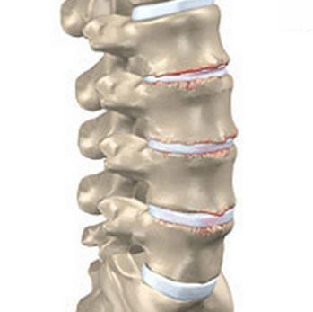Sustavi artroos Ujumine liigeste haigustes